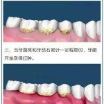 定期洗牙,让牙齿更健康